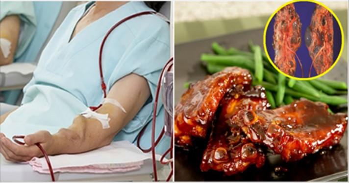 Những món ăn gây hư thận, nếu ăn càng nhiều chạy thận càng sớm