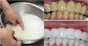 Mách nhỏ 2 cách chữa hôi miệng, làm trắng răng bằng nước gạo cực nhanh
