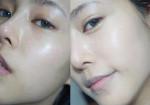 Collagen tự nhiên - 'Thần dược' chống lão hóa, xóa mờ nám da giúp phụ nữ mãi trẻ đẹp như tuổi 20