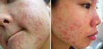 Cách trị dị ứng da mặt đơn giản giúp bạn hồi phục lại làn da khỏe mạnh nhanh chóng