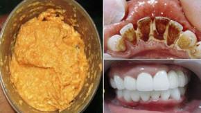 Ngậm thứ này 5 phút cao răng bật ra từng mảng, cả năm không cần đi khám