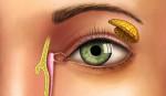 8 dấu hiệu bất thường ở mắt cảnh báo sức khỏe của bạn đang gặp nguy hiểm