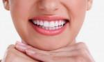 Sau Khi Tẩy Trắng Răng Cần Làm Gì?