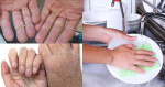 4 Tuyệt chiêu giúp tìm lại đôi tay mềm mịn như em bé sau những lần da khô ráp vì rửa chén