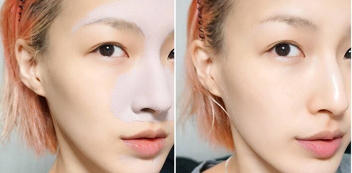Trọn bộ 5 công thức trị mụn, giảm thâm cho bạn làn da sáng mịn, đều màu