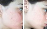 5  Cây thuốc nam quen thuộc giúp xóa sạch mụn cho bạn làn da như ý