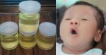 Cách dùng dầu dừa chữa 20 bệnh cho trẻ nhỏ mẹ nào cũng nên thủ sẵn cho con