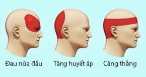 Làm thế nào loại bỏ cơn đau đầu trong vòng 5 phút mà không cần thuốc