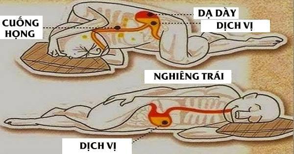 Chuyên gia Tiêu hóa BV Bạch Mai chia sẻ tư thế ngủ tốt cho dạ dày, tránh trào ngược