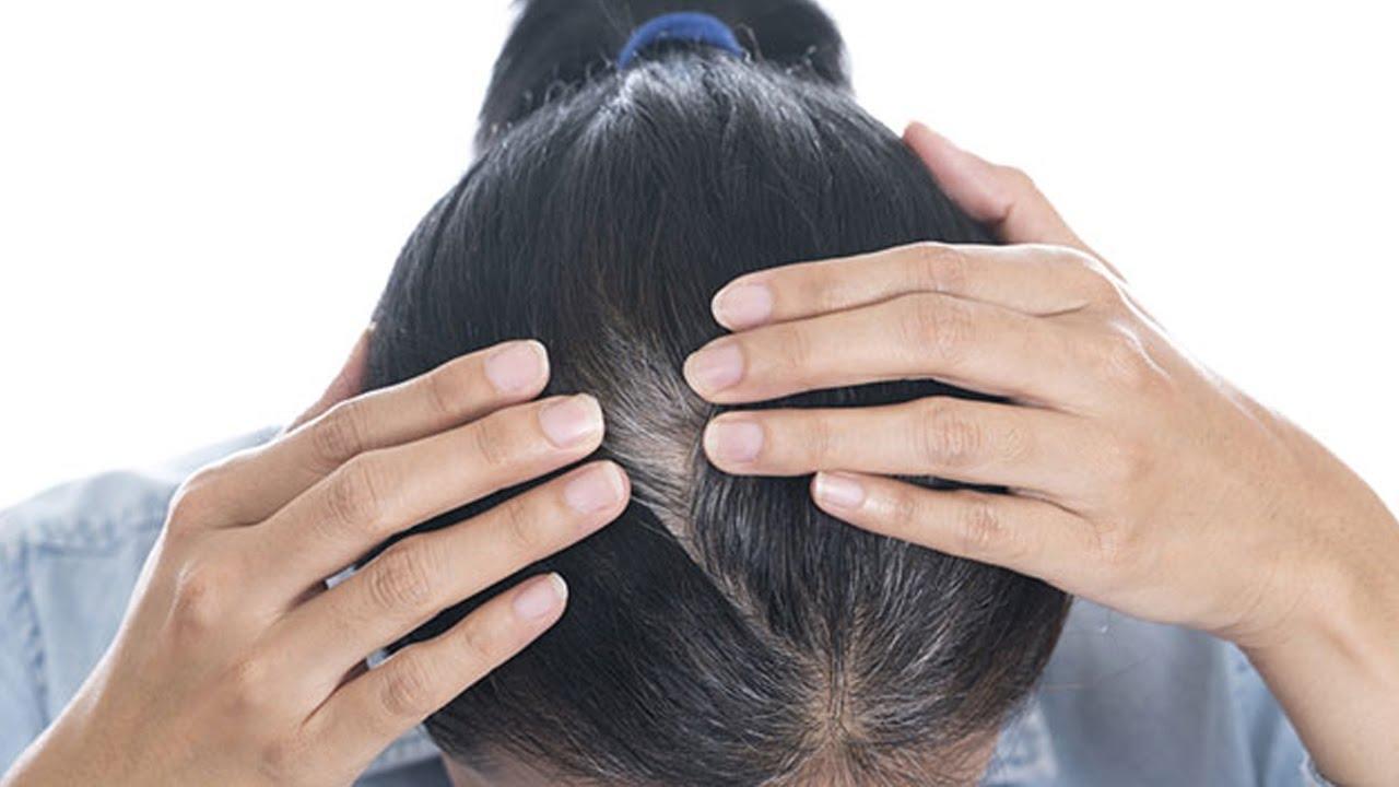"""4 """"Tuyệt chiêu"""" chữa tóc bạc sớm hiệu quả nhất"""