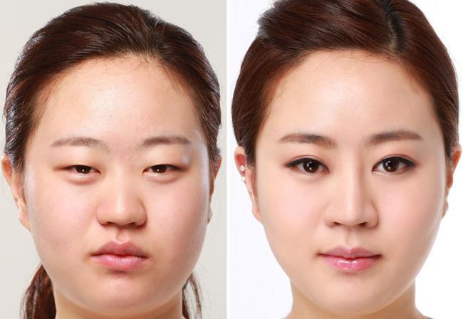 11 dấu hiệu trên gương mặt cảnh báo căn bệnh Nɡцγ ʜіểм