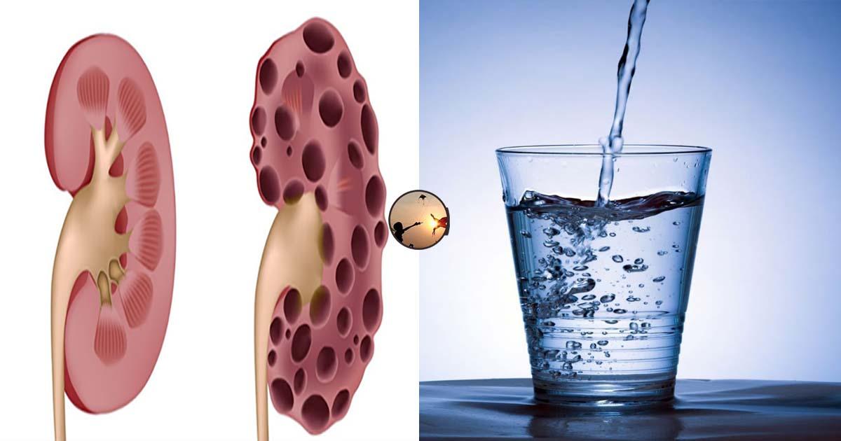 Cách kiểm tra xem có bị bệnh thận hay không: Chỉ vài 1 phút và 1 ly nước sạch