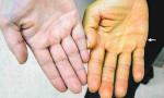 Vàng bàn tay: Dấu hiệu cảnh báo bệnh ung thư 'Top 1' ở Việt Nam