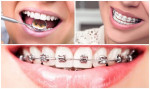 Để Niềng răng đạt hiệu quả nhất không thể vỏ qua những lưu ý quan trọng này