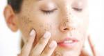 Những lưu ý quan trọng khi tẩy tế bào chết cho từng loại da