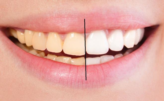 6 sai lầm phổ biến khi bạn tự làm trắng răng tại nhà