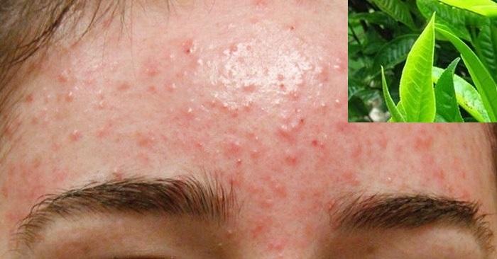 3 cách trị mụn ẩn dưới da tại nhà có hiệu quả tức thì