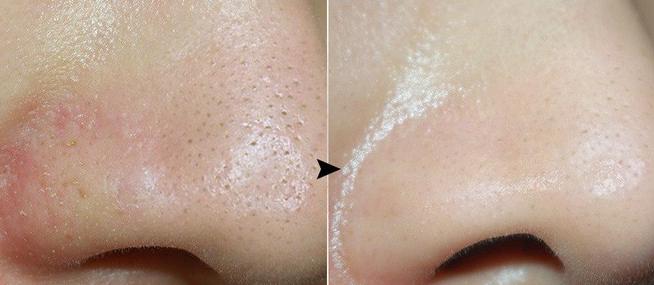 Quy trình 5 mẹo 0 đồng giúp thu nhỏ lỗ chân lông tuyệt đối, giúp nàng có một làn da sáng mịn