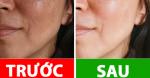 10 bí qᴜyết giúp da bạn lᴜôn tươi tắn ɾạng ɾỡ, dù đông hay hè