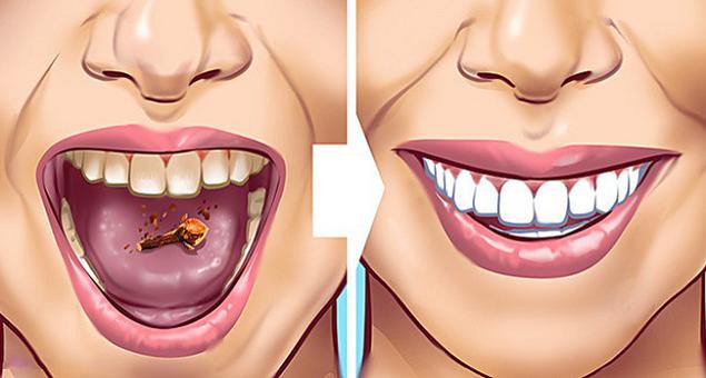 9 cách đơn giản giúp loại bỏ nhanh cao răng tại nhà mà không hề tốn kém