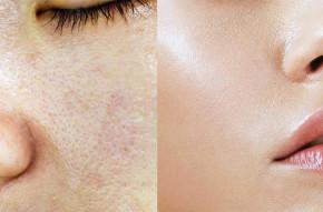 6 công thức mặt nạ dưỡng da dầu vừa giúp cấp ẩm vừa ngăn dầu hiệu quả