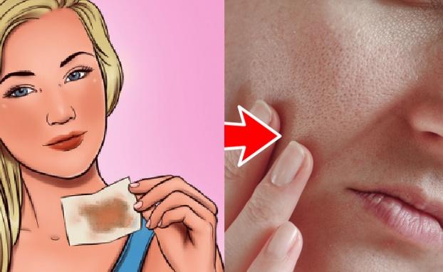 8 sai lầm khi chăm sóc da khiến lỗ chân lông của bạn to hơn