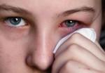 Tuyệt chiêu trị đau mắt đỏ hữu hiệu bằng khoai tây, mật ong