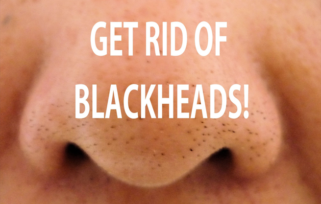 Mẹo loại trừ mụn đầu đen chỉ trong 30 giây!