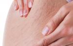 Rạn da mông, đùi, bụng, làm sao chữa khỏi?