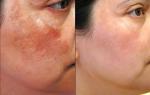 2 phương pháp điều trị nám da mà bạn cần biết