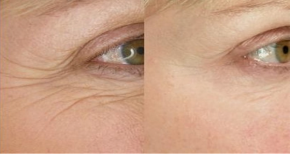 Nếp nhăn vùng quanh mắt: Nên xóa bằng cách nào hiệu quả?