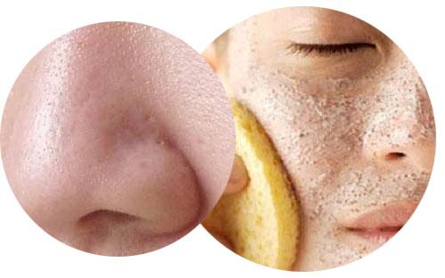 Các sản phẩm se khít lỗ chân lông nổi tiếng có thật sự hiệu quả?